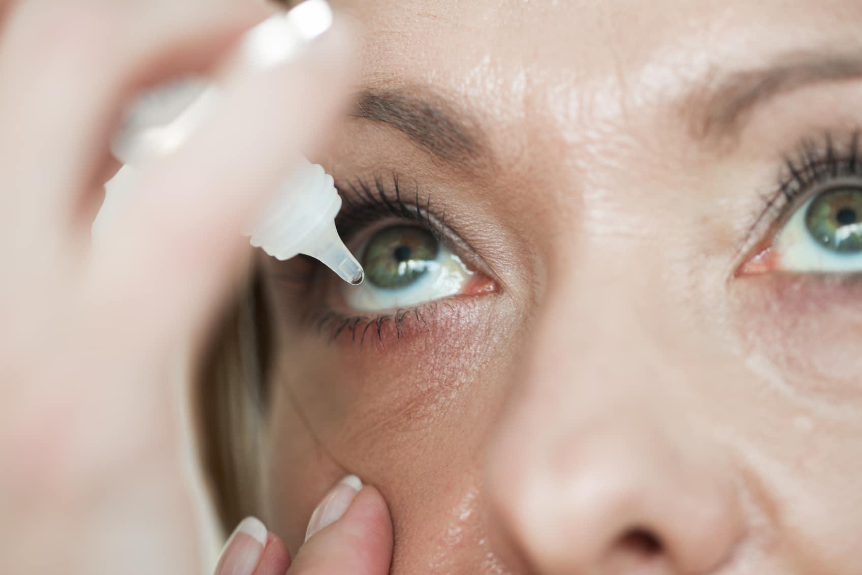 Woman usind eyedropper...applying eye drops
